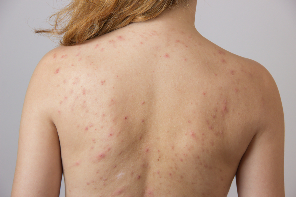 back acne on woman