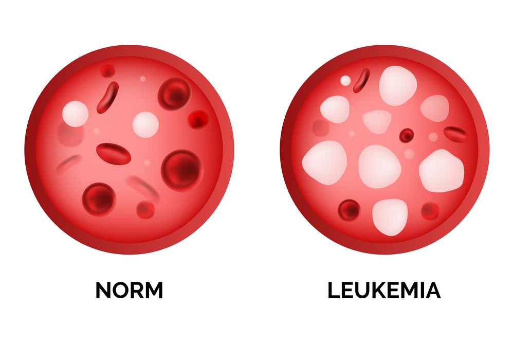 leukemia comparison